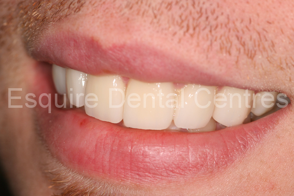 Cosmetic Dentistry Case 9